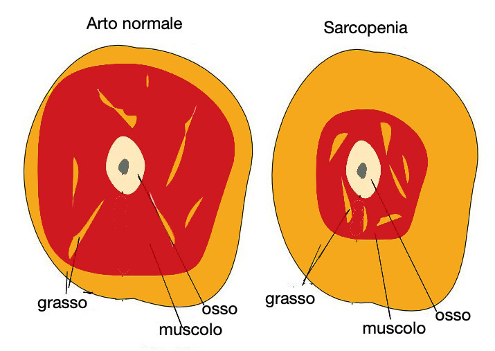 sarcopenia - AGING Project
