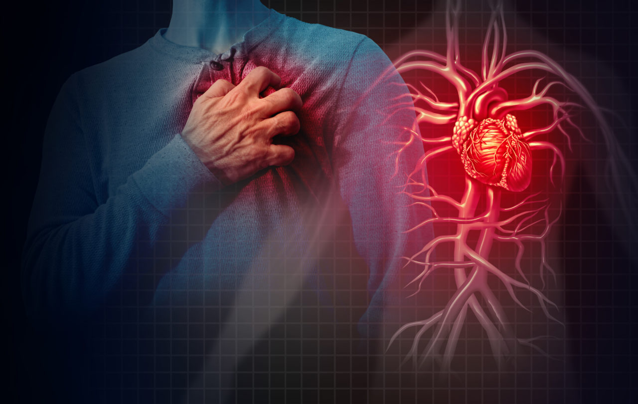 Acute coronary syndrome: reduction of Emergency Department presentations during the COVID-19 period | Aging Project Uniupo